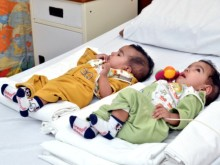 Successful Operation at Aga Khan University Hospital, Pakistan: Conjoined twins separated through surgery