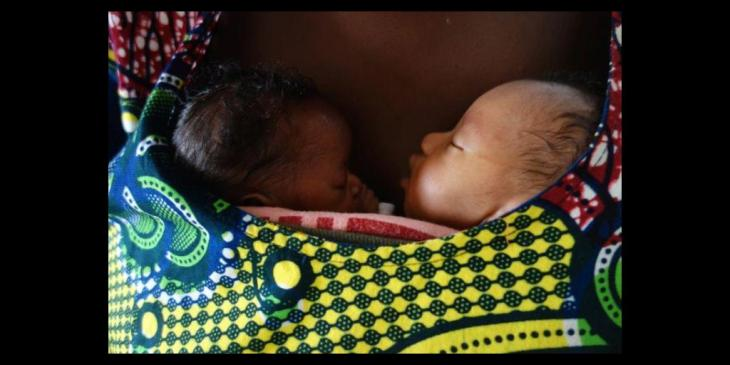 Kangaroo Mother Care Helps Premature Babies Thrive 20 Years Later